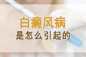白癞风皮肤疾病发病时通常主要