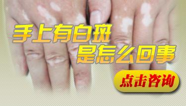 手部白斑病的发病原因