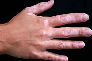 白癫风的早期症状有哪些