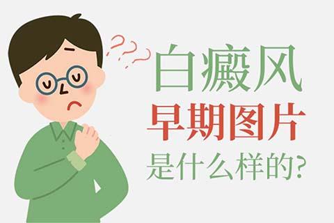 发展期的白癜风是什么症状