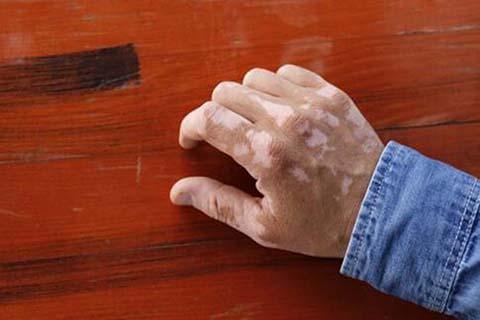 肢端型白癜风会有哪些症状?